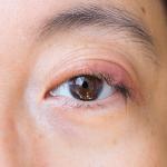 Blepharitis | ozidex