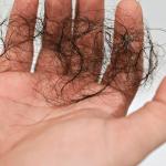 Hair loss treatment | ozidex