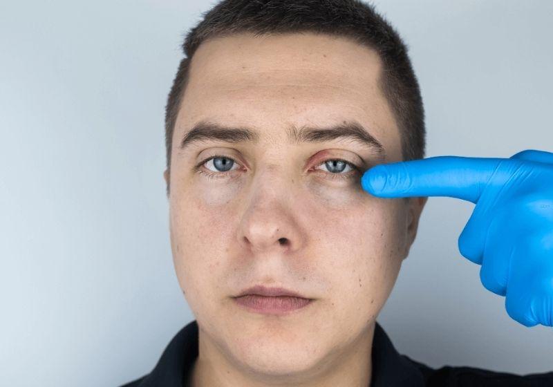 Controlling Eyelash Mites (Blepharitis Treatment)