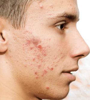 Demodex contains various harmful bacteria