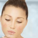 Exacerbation of rosacea | ozidex