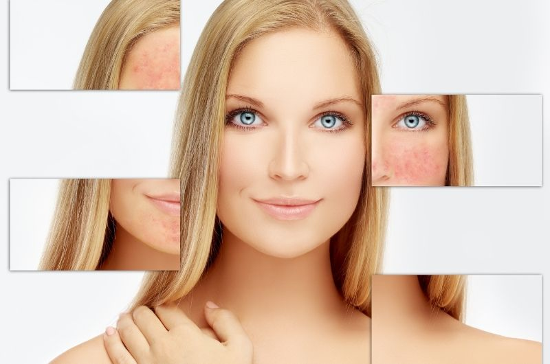 Rosacea Types, Causes, How to Control it