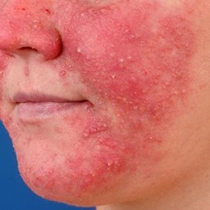 The Cause of Rosacea