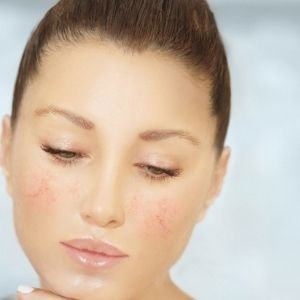 The Role of Demodex in Rosacea