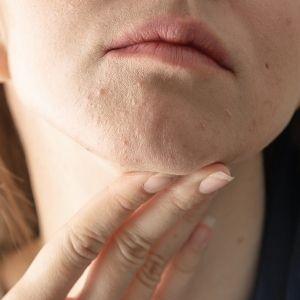 Demodex and Fungal Acne Demodex treatment-ozidex
