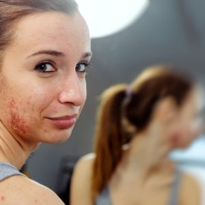Fungal Acne Symptoms vs. Regular Acne Demodex and Fungal Acne