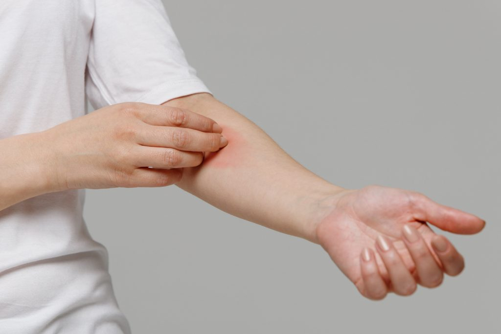Topical treatments for itching