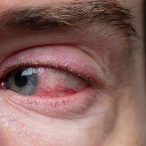 Posterior Blepharitis (demodex)
