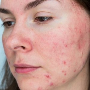 Rosacea-how to get rid of Demodex mites on scalp