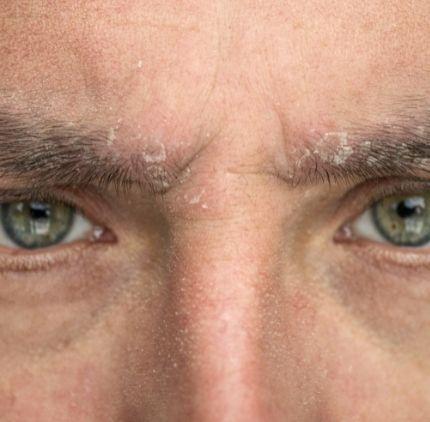 contact dermatitis | ozidex